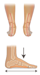 Senkfuss pronation